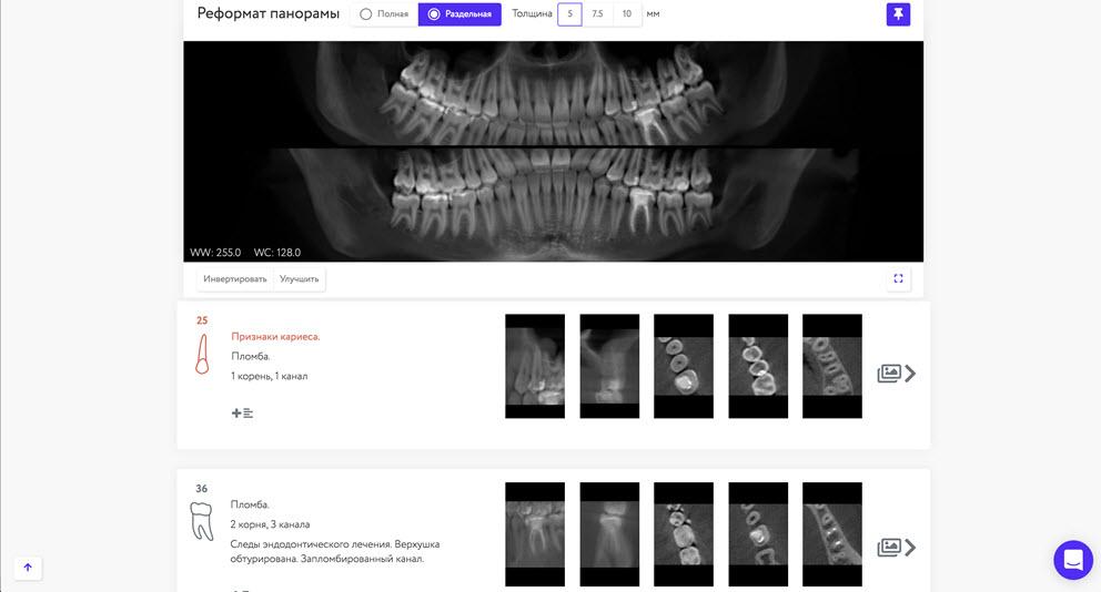 Пример рентгенологического отчета